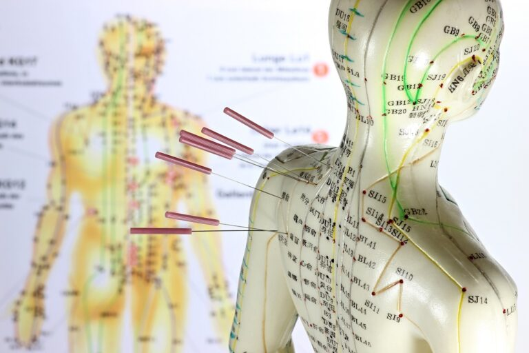Acupuncture East Grinstead